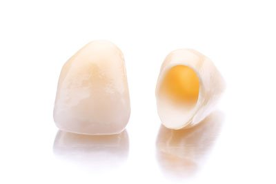 an image of a dental crown in milton