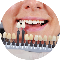 Dental veneers in milton image